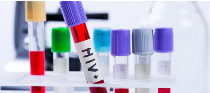 5 Reasons You Should Get Tested for HIV