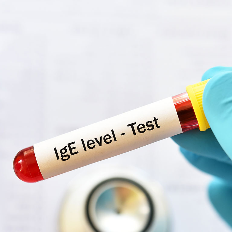 ISAC Test